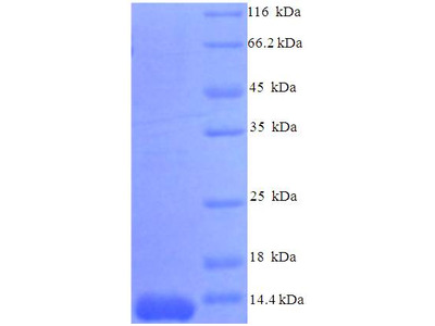 CCL7 / MCP3 Protein