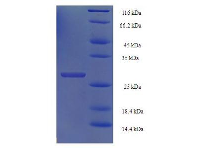 HIST1H2BN Protein