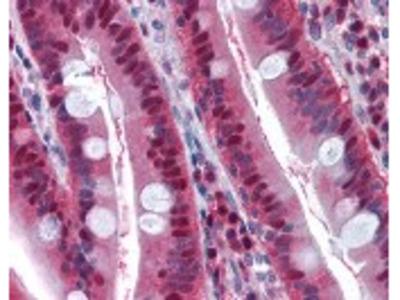 LTA4H Antibody