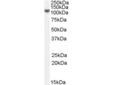 hCAP-H Antibody