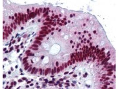 HNRNPK Antibody [F45 P9 C7]