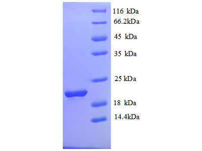 SLC41A2 Protein