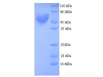 ARNT / HIF-1-Beta Protein