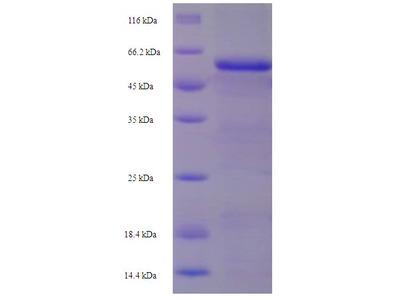 SERPINE2 / Nexin Protein