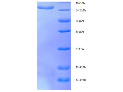D2HGDH Protein