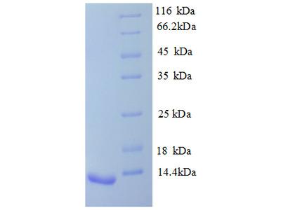 AVPR1B Protein
