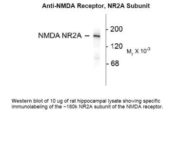 NMDA Antibody