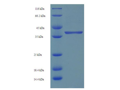 SRSF10 / FUSIP1 Protein
