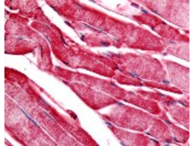 PYGM Antibody
