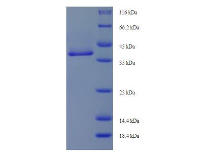 ANXA5 / Annexin V Protein