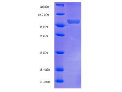 FDXR Protein