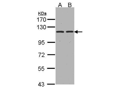 Anti-Aminopeptidase A antibody [C2C3], C-term