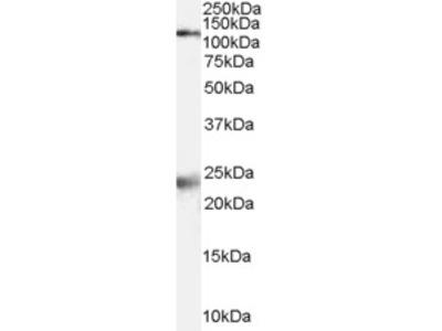 NMDA Receptor Antibody