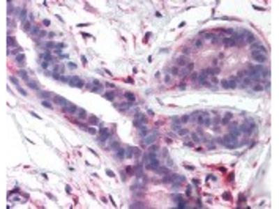 PTK2 Antibody