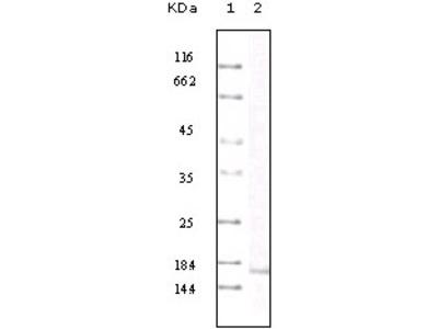 MCP-1 Antibody [1A7B8]