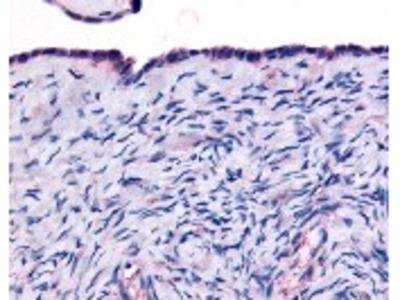 Thyroid Hormone Receptor alpha Antibody