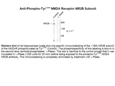 NMDA (phospho Tyr1336) Antibody