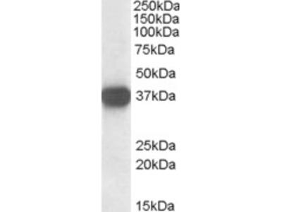 Nucleophosmin Antibody