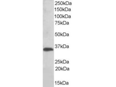 TXNDC1 Antibody