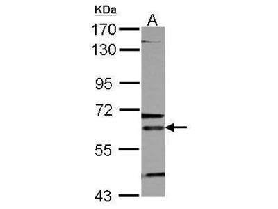 Anti-ALAS-E antibody [N3C3]