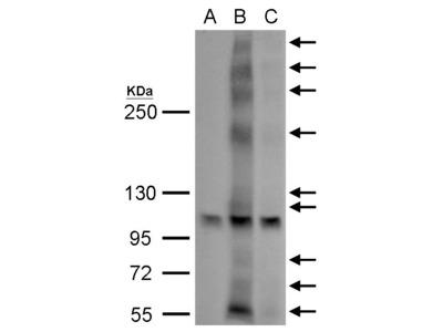 Anti-GPR30 antibody
