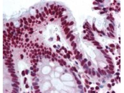 THRAP3 Antibody