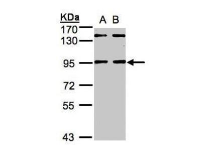 Anti-NRIP antibody