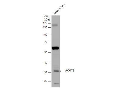 Anti-ACOT8 antibody [N1C3]