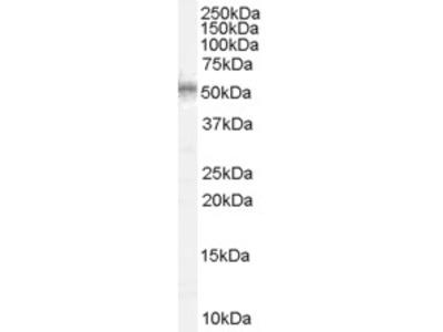 WT1 Antibody