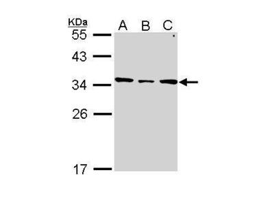 Anti-SLC25A22 antibody [N1C3]
