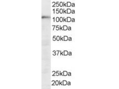 SART1 Antibody