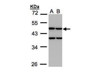 Anti-Creatine kinase MT antibody