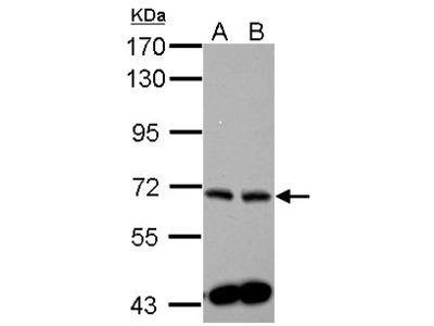 Anti-SPHK2 antibody