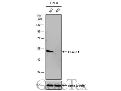 Anti-Fascin 1 antibody [N2C2], Internal