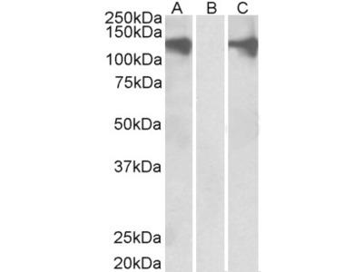 PUM2 Antibody