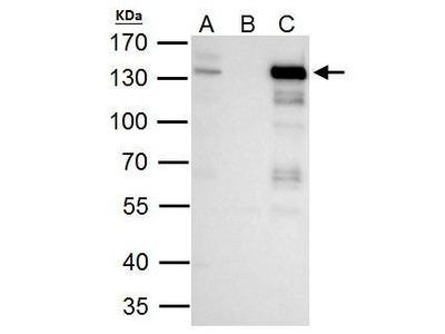 Anti-TTF2 antibody