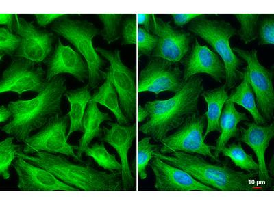 Anti-beta Tubulin antibody