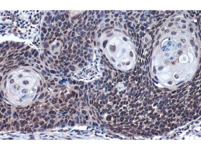 Anti-LOXL2 antibody