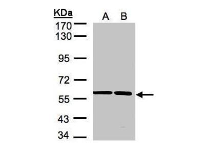 Anti-SRPR antibody [C1C3]