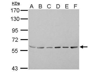 Anti-ASC1 antibody