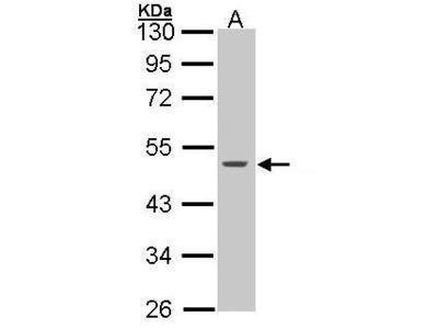 Anti-Cytokeratin 15 antibody