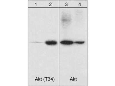 Akt Phospho-Regulation Antibody Sampler Kit