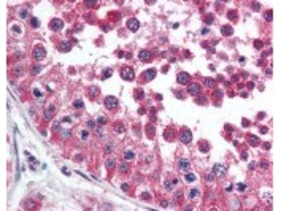 HAVCR1 Antibody