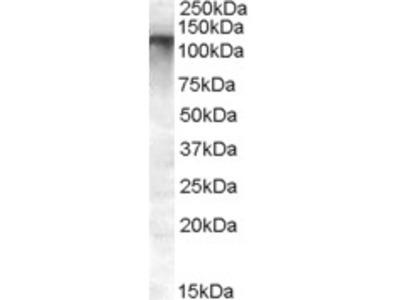 MRP8 Antibody