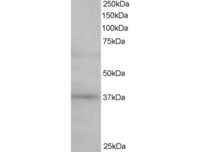 Renin Receptor Antibody