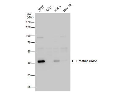 Anti-Creatine kinase (muscle) antibody [N2C3]