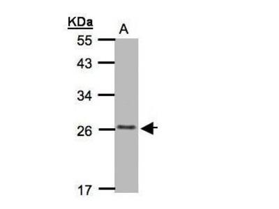 Anti-CKLFSF5 antibody [C2C3], C-term