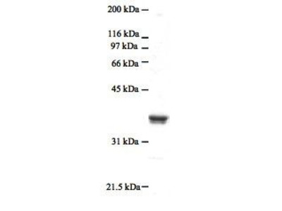 CircuLex Human S100A4 Low Endotoxin