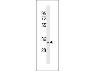 Anti-Aurora C antibody