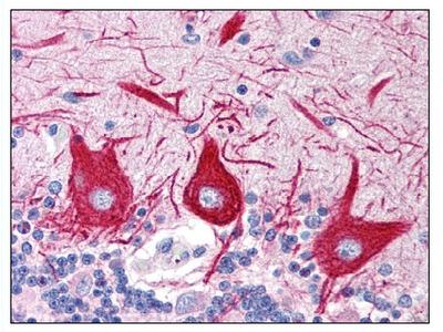 anti SLC15A1 / PEPT1 (C-term)